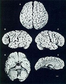220px-Einstein's_brain_(Lancet)